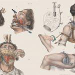 Desivé obrázky odhaľujú brutálne lekárske zákroky vo viktoriánskej dobe