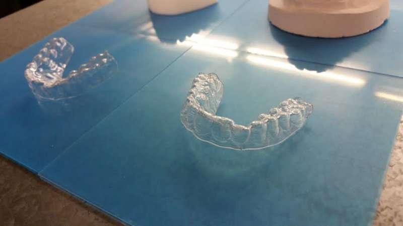 plastové rovnátka na zuby