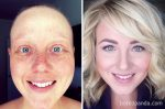 Neuveriteľné silné fotky. 10 ľudí, ktorí nakopali rakovine zadok