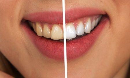 zubný povlak