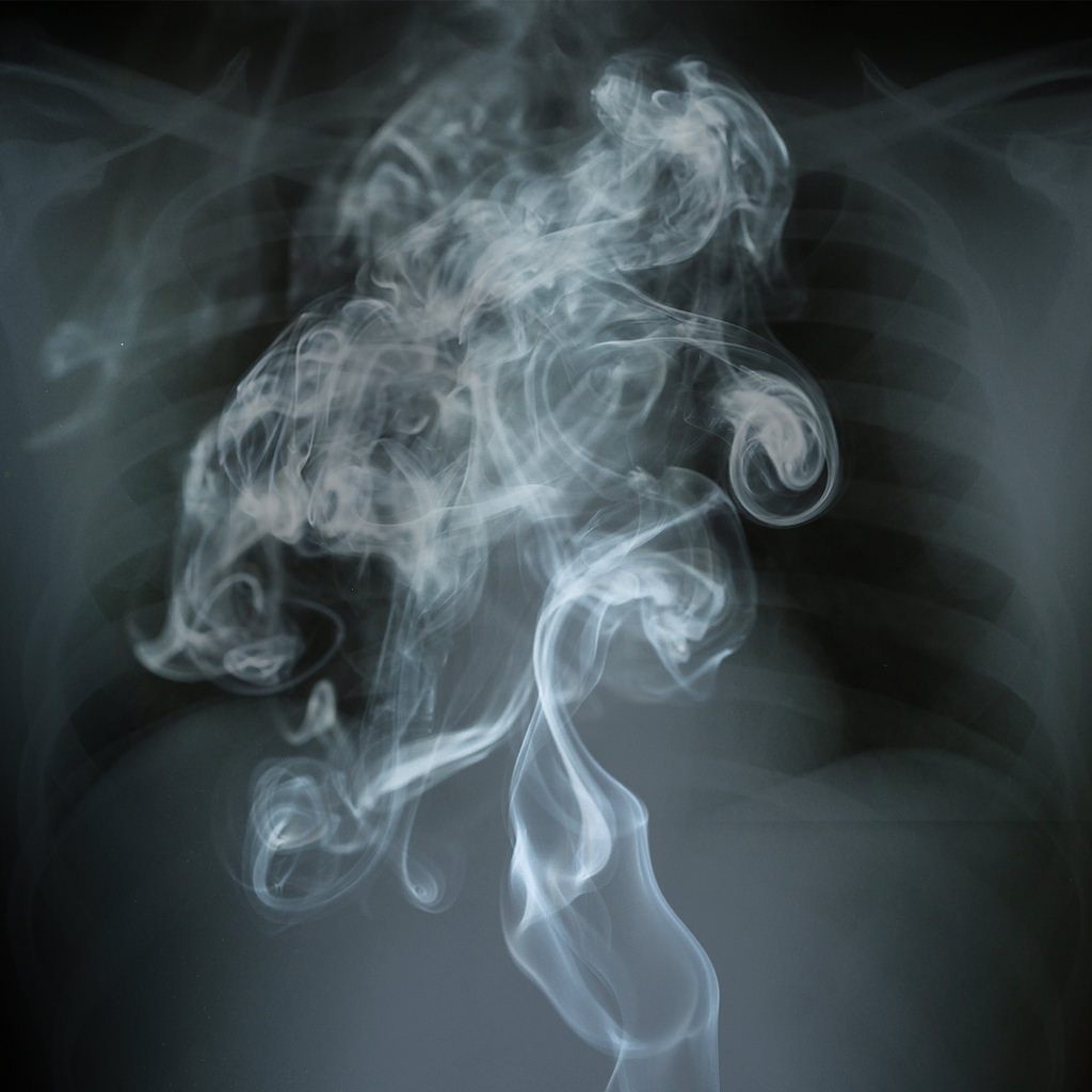 """<a href=""https://www.flickr.com/photos/free-images-flickr/42825375172/"" target=""_blank"">Smoke In Your Lungs</a>"" (<a href=""https://creativecommons.org/licenses/by/2.0/"" target=""_blank"" rel=""license"">CC BY 2.0</a>) by <a href=""https://www.flickr.com/people/free-images-flickr/"" target=""_blank"" rel=""cc:attributionURL"">Free For Commercial Use (FFC)</a>"