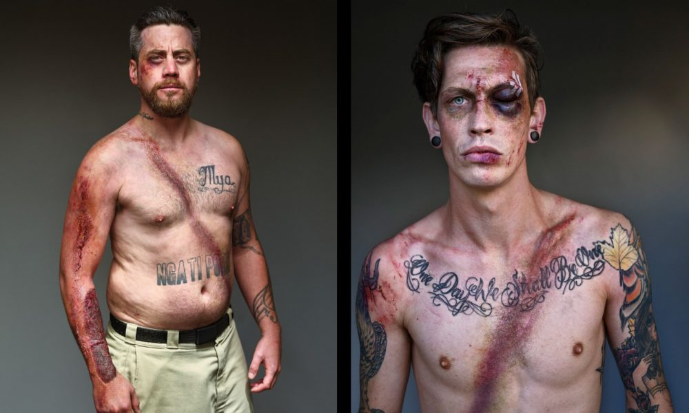 Aké následky na ľudskom tele zanechá autonehoda? 10 fotografií preživších