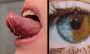 10 zvláštnych a extrémne vzácnych telesných defektov, ktoré ste ešte určite nevideli