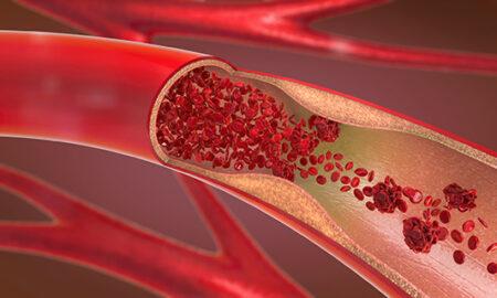 Ako funguje jedlo: Cholesterol
