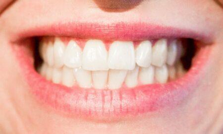 bolesť zubov